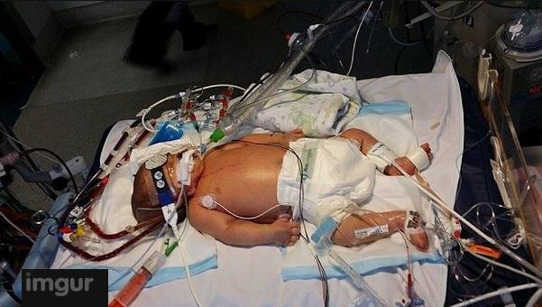 bébé-mort-3