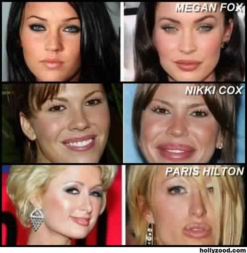 botox-fail-6