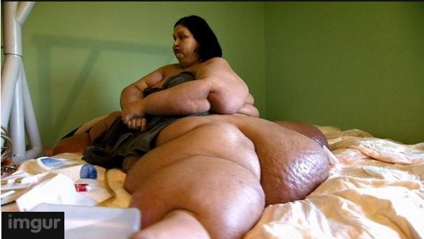 femme-obese-1