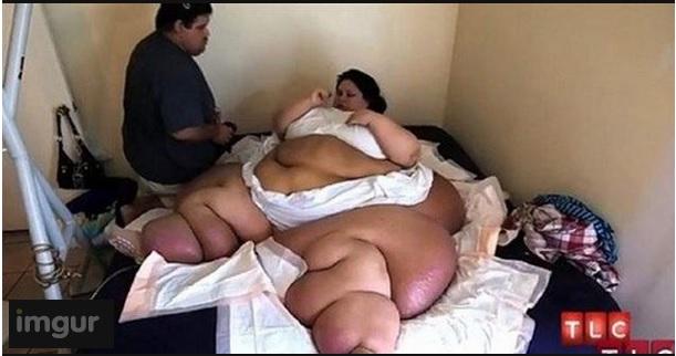 femme-obese