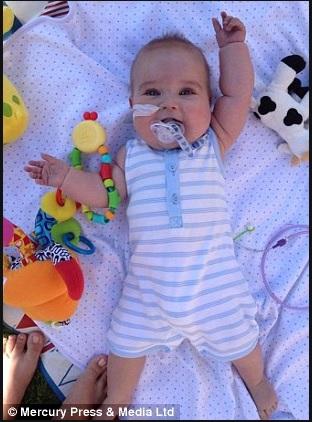 bébé-operations-