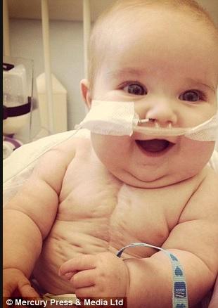bébé-operations-4