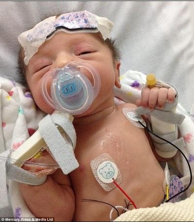 bébé-operations-5