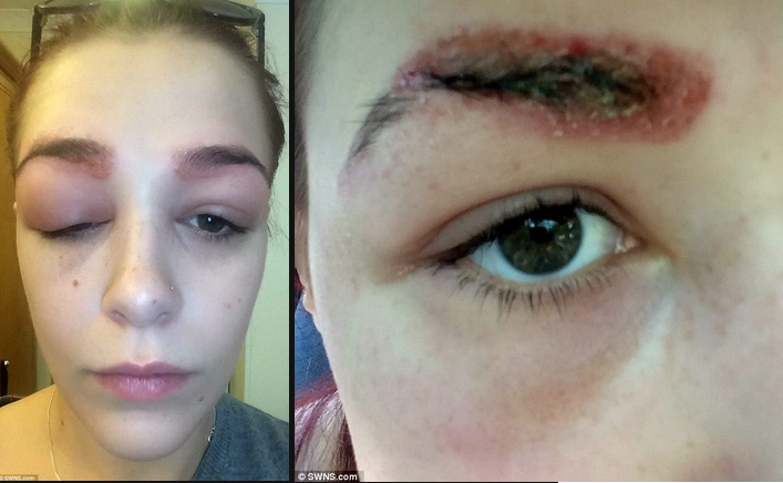 Source: dailymail.co.uk/femail/article-3175932/Teenager-left-scabby-face-one-eye-swollen-shut-having-severe-allergic-reaction-treatment-bushy-eyebrows.html