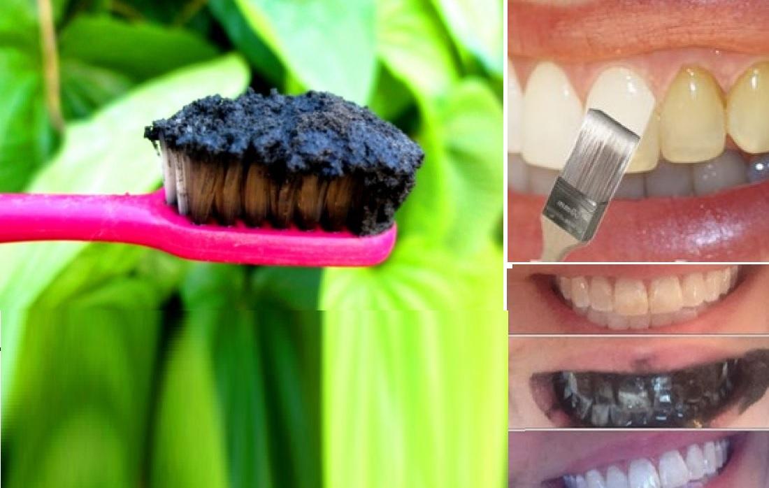 comment avoir les dents blanches facilement et sans d penses astuces pour femmes. Black Bedroom Furniture Sets. Home Design Ideas
