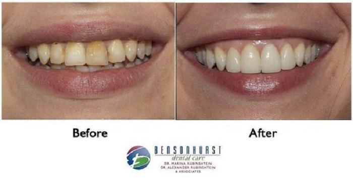 how to get rid of craze lines in teeth